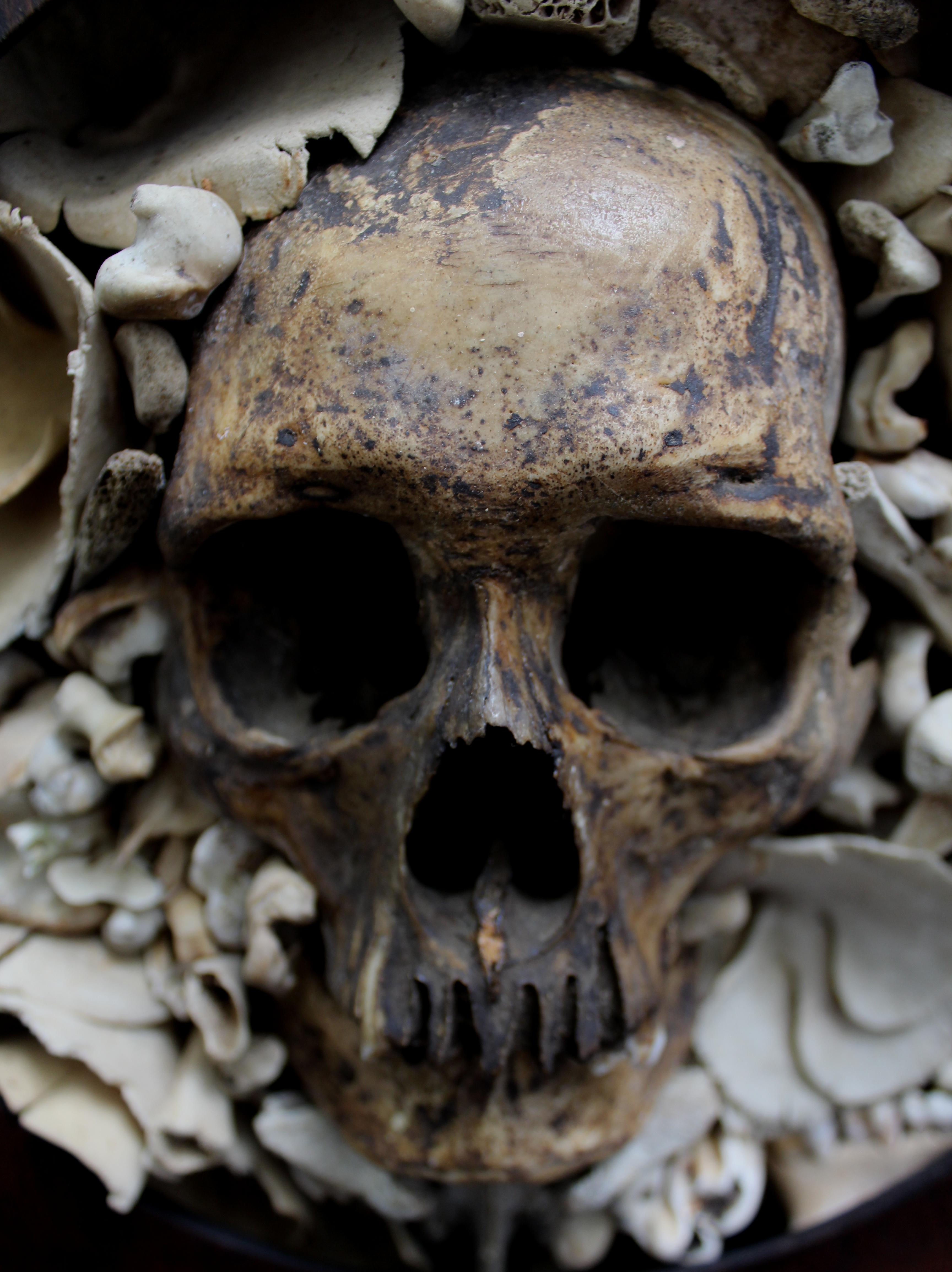 Crushed Human Skull Sa...